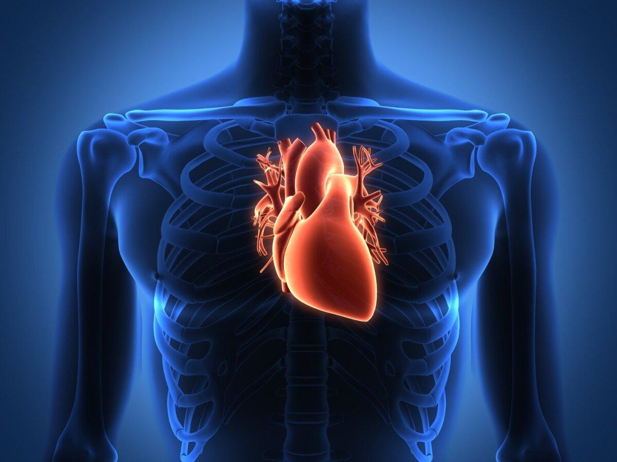 Išeminė širdies liga (IŠL)