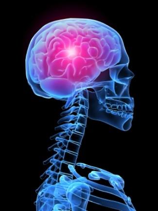 Galvos skausmas su ateroskleroze - Širdies priepuolis November