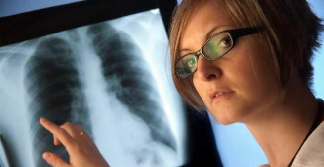 plaučių hipertenzijos sindromas
