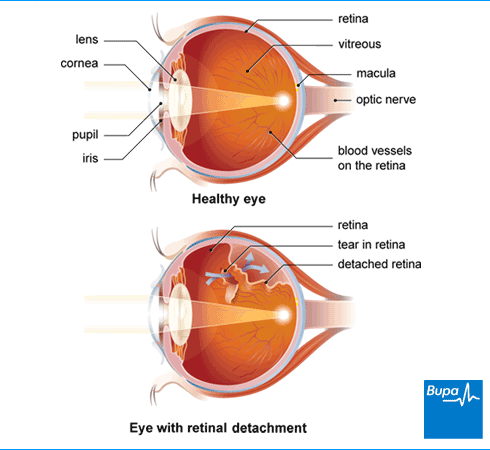 komplikacijos akyje su hipertenzija