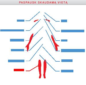 būdai, kaip atsikratyti hipertenzijos ligų)