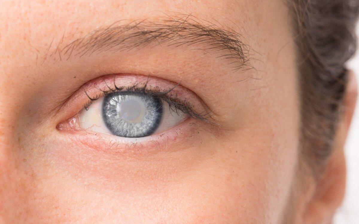 akių indų pokyčiai su hipertenzija)
