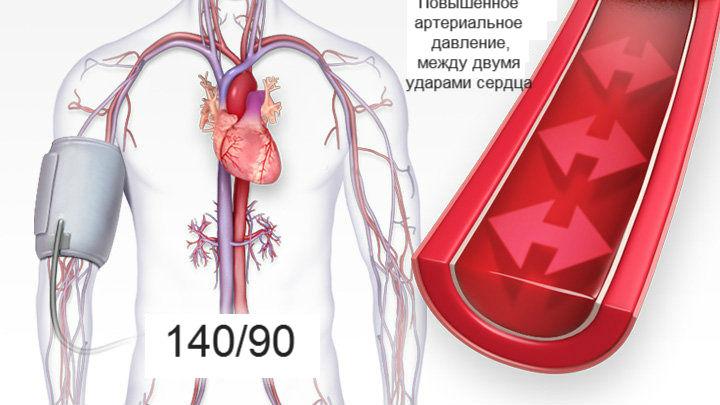 hipertenzija apatinis viršutinis slėgis