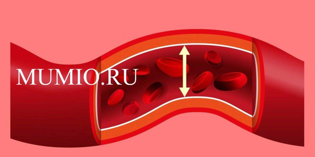 hipertenzija ir eritrocitozė)