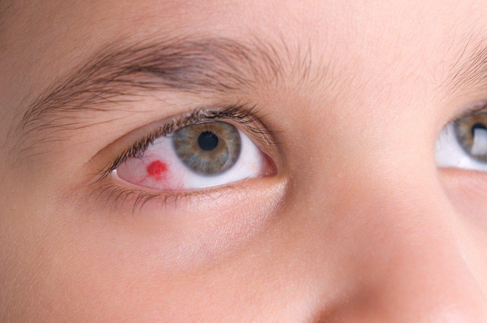 akių skausmas su hipertenzija)
