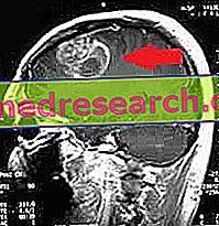hipertenzija ir smegenų auglys actas gydo hipertenziją