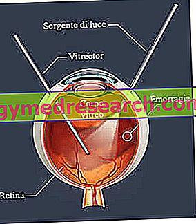 hipertenzija su kraujavimu į akį