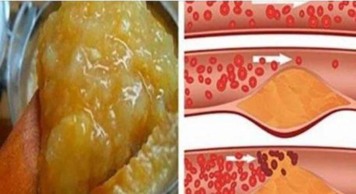 kaip pašalinti hipertenziją
