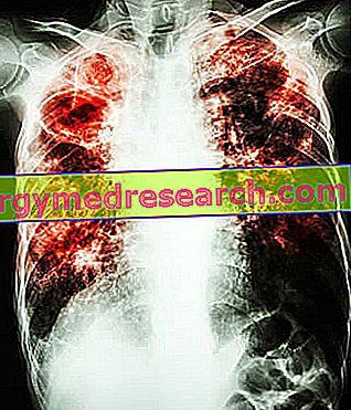 kaip gydyti plaučių hipertenziją