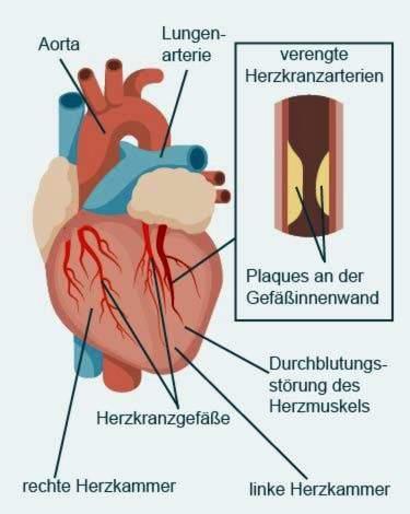 cukrinio diabeto hipertenzija ir krūtinės angina
