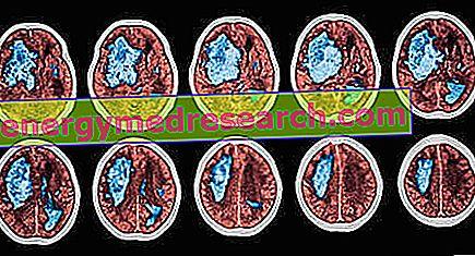 hiperkinetinis hipertenzijos tipas