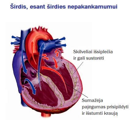 širdies hipertenzijos simptomų gydymas