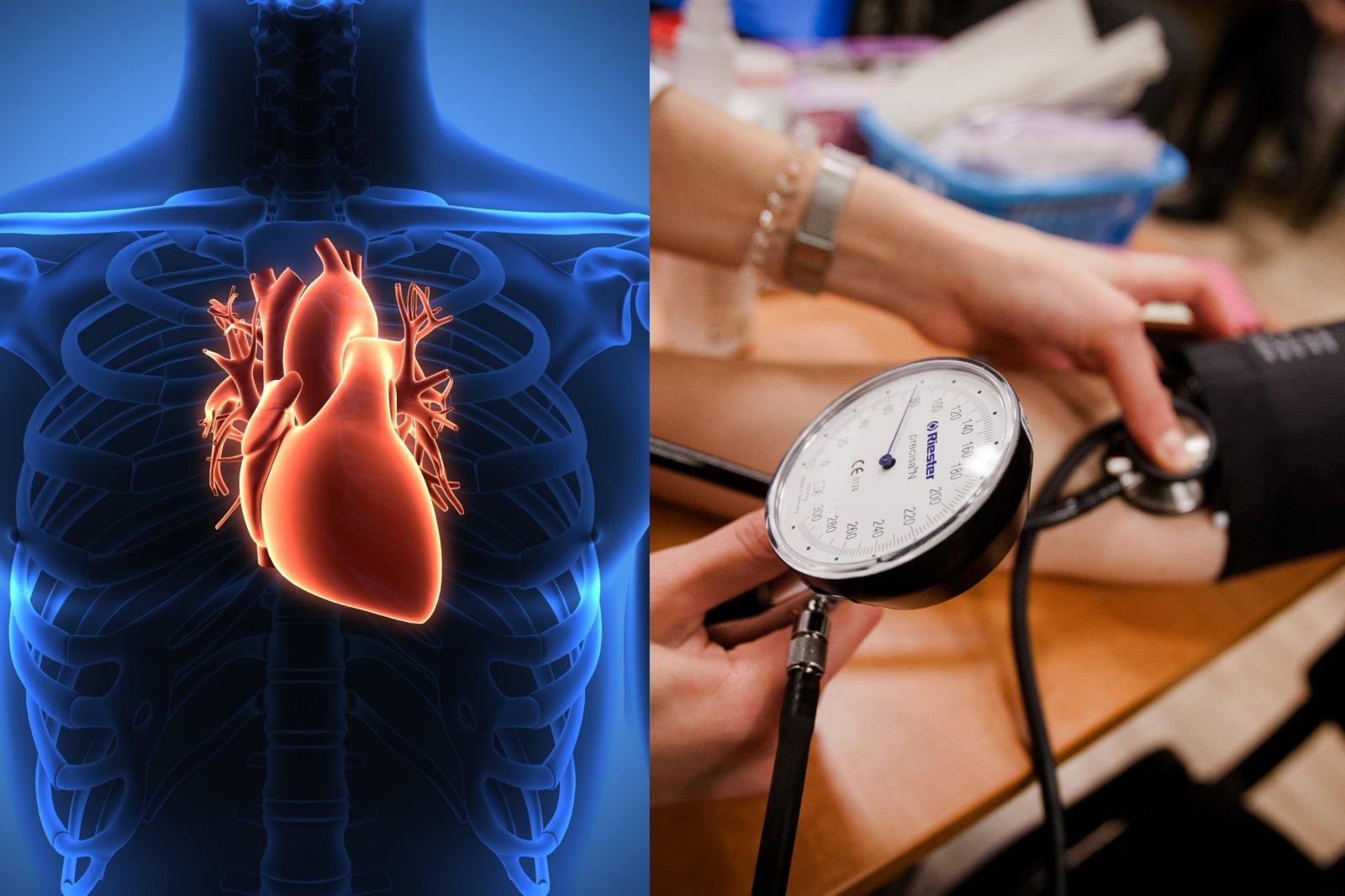 kaip išprovokuoti hipertenziją