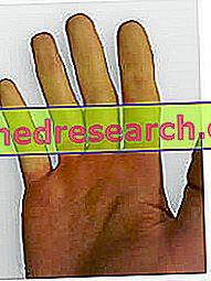 hipertenzija su Raynaudo sindromu)