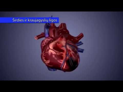 kaip gydyti širdies hipertenziją hipertenzija kokie vaistai reikalingi