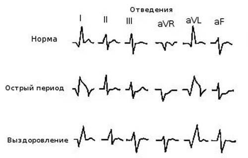 hipertenzijos gydymas derva