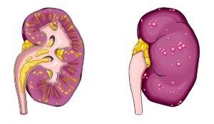 ambulatorinė hipertenzija kurie atsikratė hipertenzijos liaudies gynimo priemonėmis