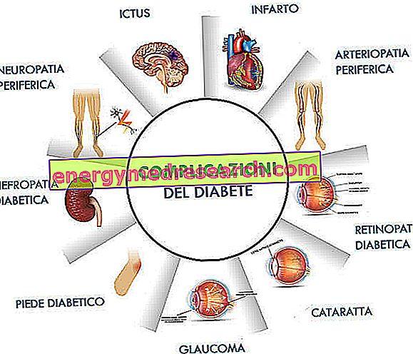 ūminė hipertenzija su komplikacijomis