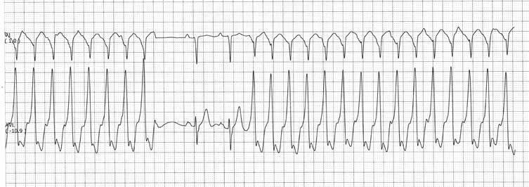 sinusinė tachikardija ir hipertenzija
