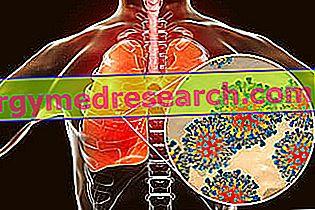 bronchito hipertenzija