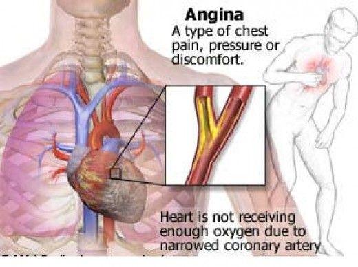 kaip normalizuoti miegą esant hipertenzijai geriausias alkoholis širdies sveikatai