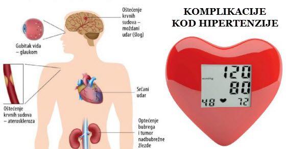 Rusijos vaistai hipertenzijai