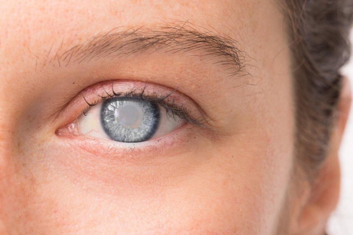 akies kraujagyslių pokyčiai su hipertenzija
