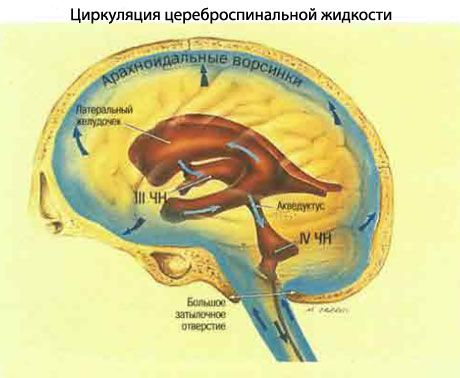 intrakranijinė hipertenzija ir hipertenzija