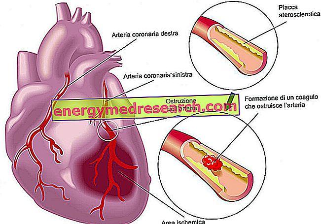 moterų sveikatos širdies priepuolis