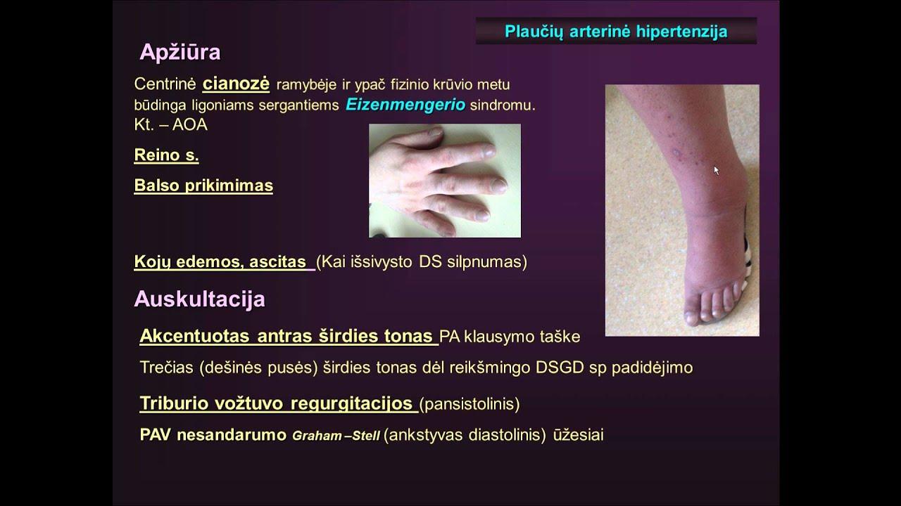 plaučių hipertenzijos rekomendacijos)