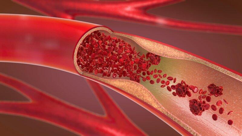 kraujo krešulys su hipertenzija)
