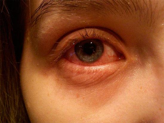 Efektyvūs nosies dekongestantai