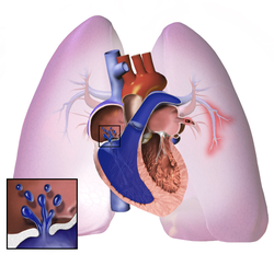 hipertenzija diuretikas