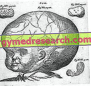 hipertenzija smegenų mityba