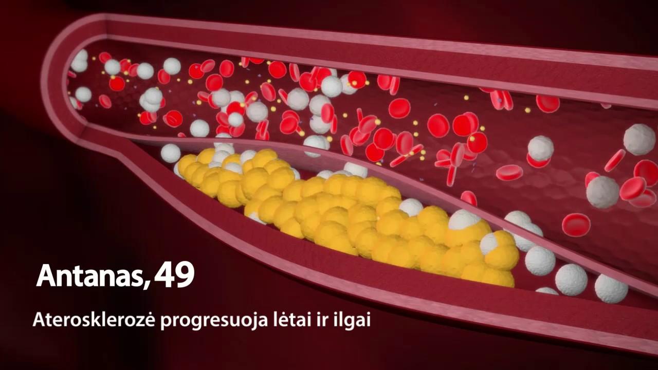 hipertenzija lėtinė liga