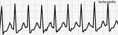 vegetacinė kraujagyslių distonija su hipertenzija hipertenzija 2b laipsnis
