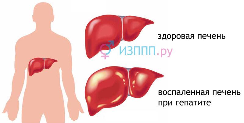 Hepatito tipai