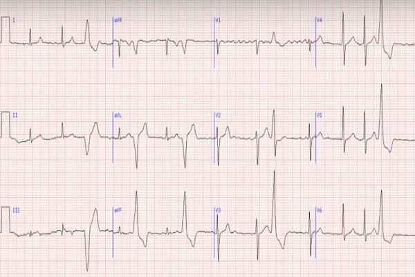 ką rodo kardiograma dėl hipertenzijos