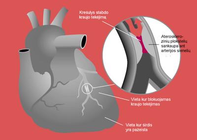 Mildronato kultūrizmas - Hipertenzija
