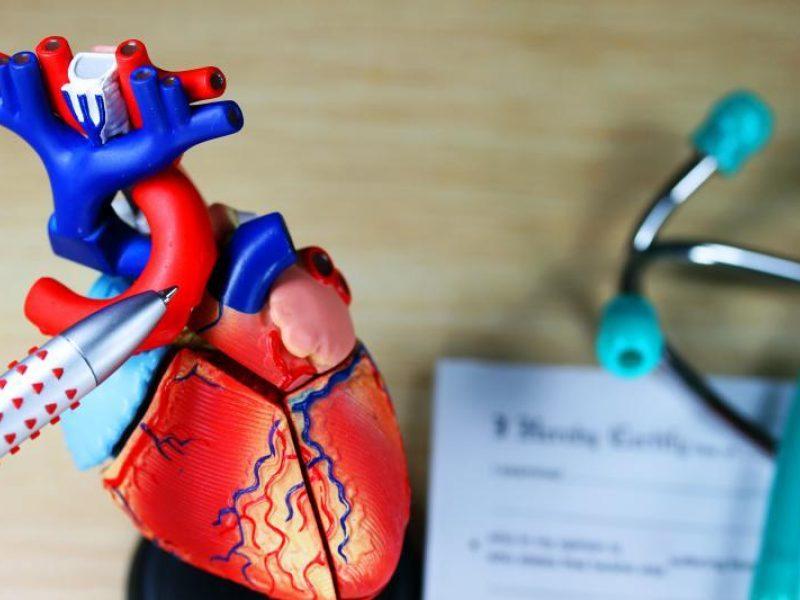 maisto produktai naudinga hipertenzija vaistai nuo aukšto kraujospūdžio nepadeda