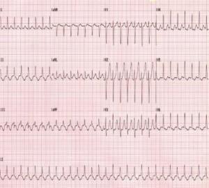 Aritmija (Širdies ritmo sutrikimai)