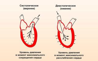 prasta kardiogramos hipertenzija kaip bėgioti su hipertenzija