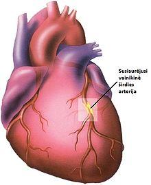 kraujagyslės susiaurėjusios dėl hipertenzijos