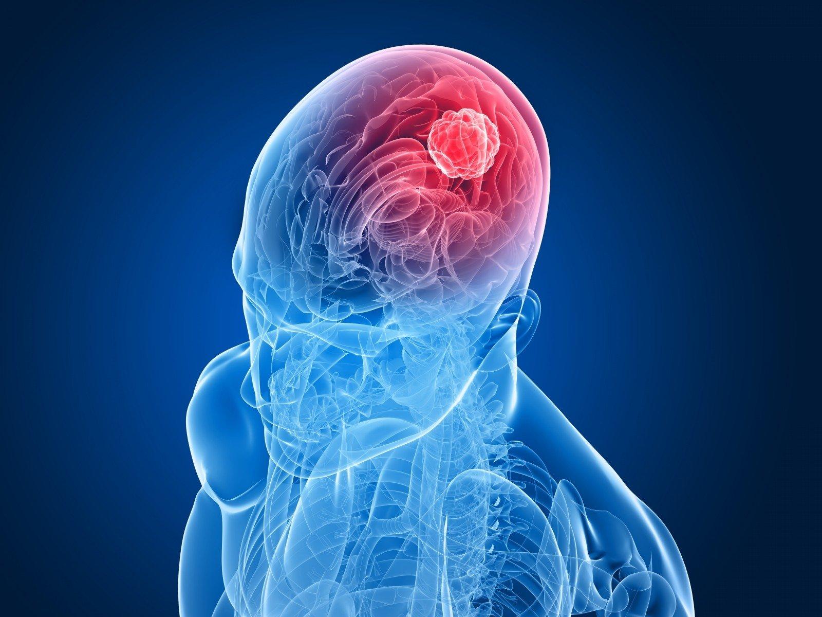 smegenų navikai ir hipertenzija)