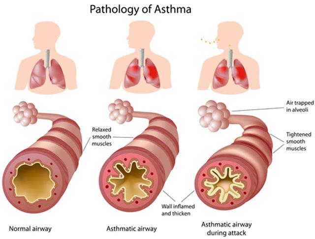 Lėtinis bronchitas. Kaip jį atpažinti?