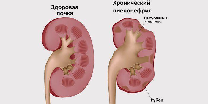 dibazolio hipertenzija)