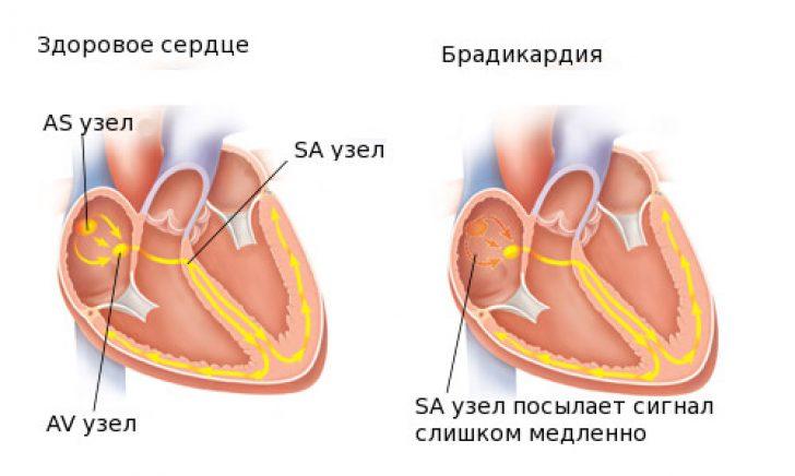 vaistai hipertenzijos slėgiui mažinti