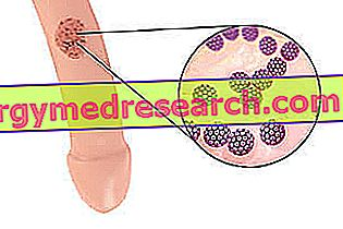 raudonos dėmės su hipertenzija
