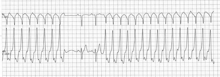 prasta kardiogramos hipertenzija