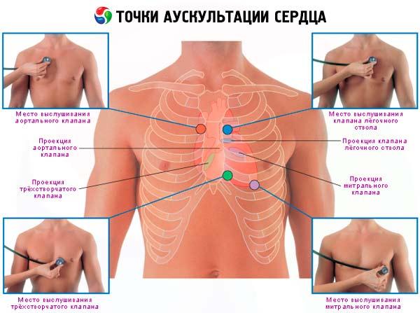 kuo skiriasi hipertenzija nuo ncd leo boqueria hipertenzija yra pavojinga, tačiau ją lengva gydyti
